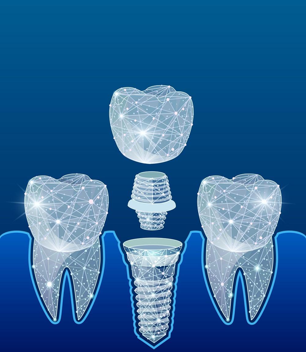 implant dentar bucuresti, dinti lipsa, implant dentar beneficii, cabinet stomatologic anda cureceru