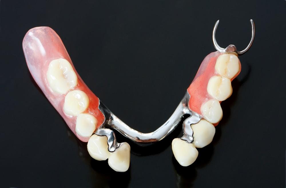 protetica dentara bucuresti, coroana dentara bucuresti, proteza dentara scheletata bucuresti