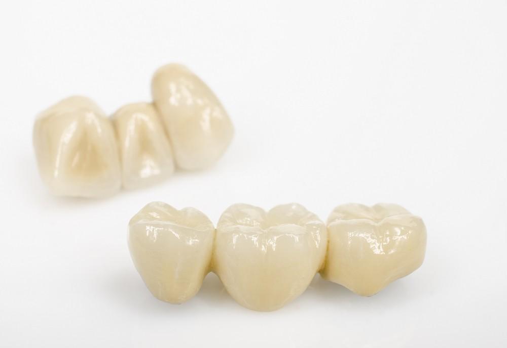 protetica dentara bucuresti, coroane dentare bucuresti, proteza scheletata bucuresti