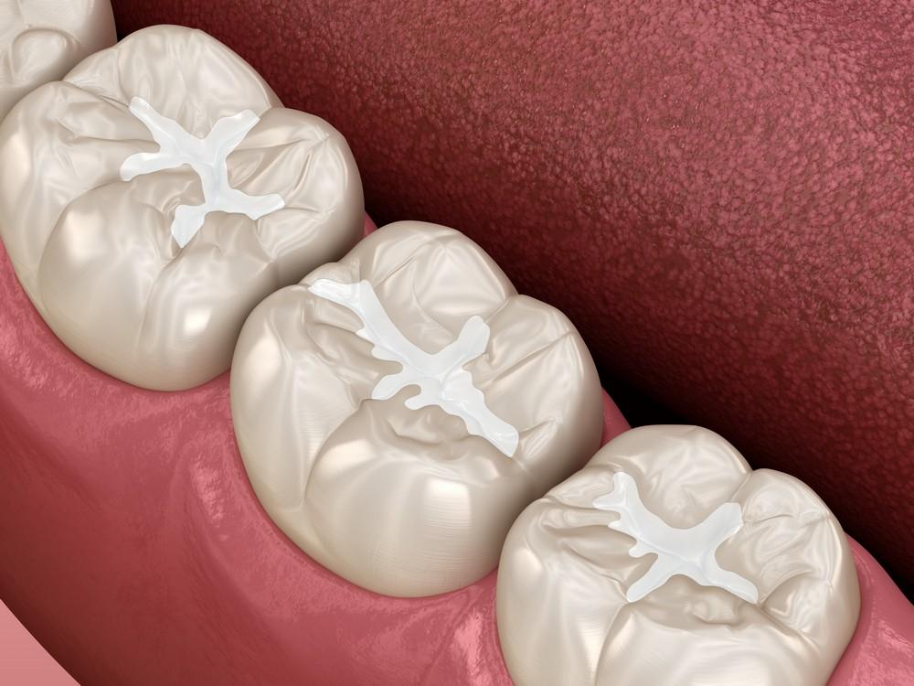 sigilari dentare bucuresti, cabinet stomatologic dr anda cruceru, dentist