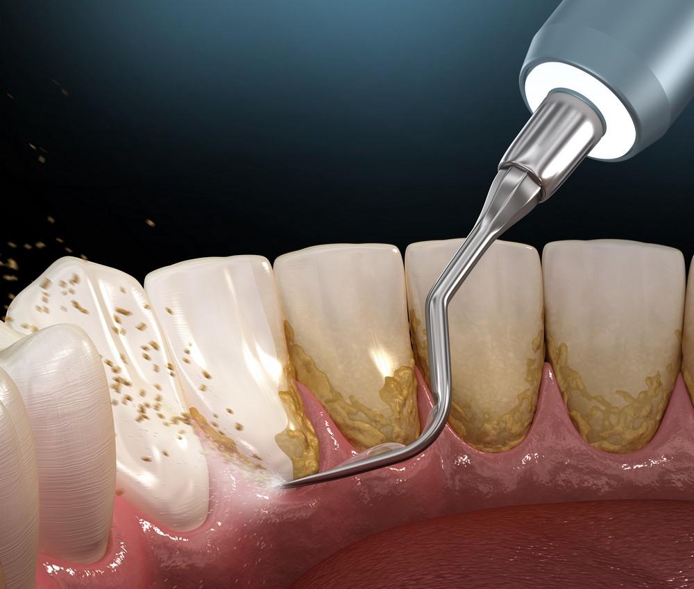 detartraj dentar bucuresti, igienizare dentara bucuresti, stomatolog bucuresti, dr anda cruceru