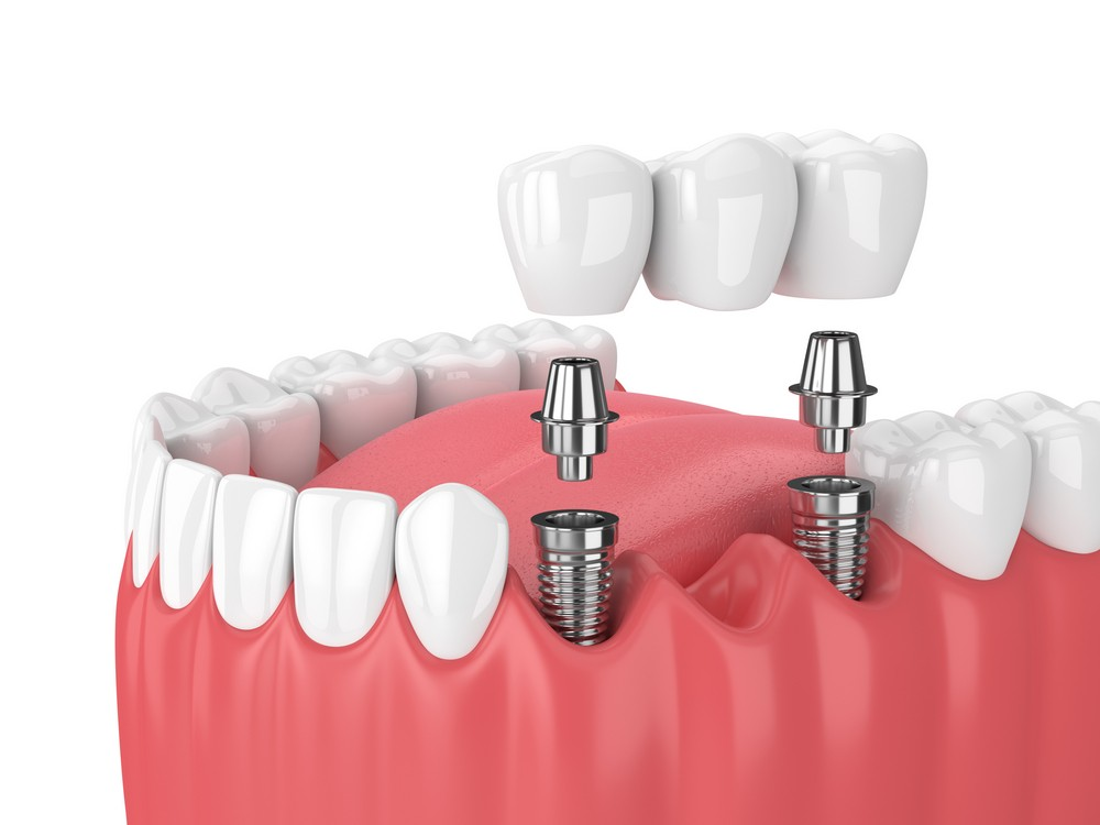 implant dentar bucresti, dinti lipsa, cabinet stomatologic anda cruceru