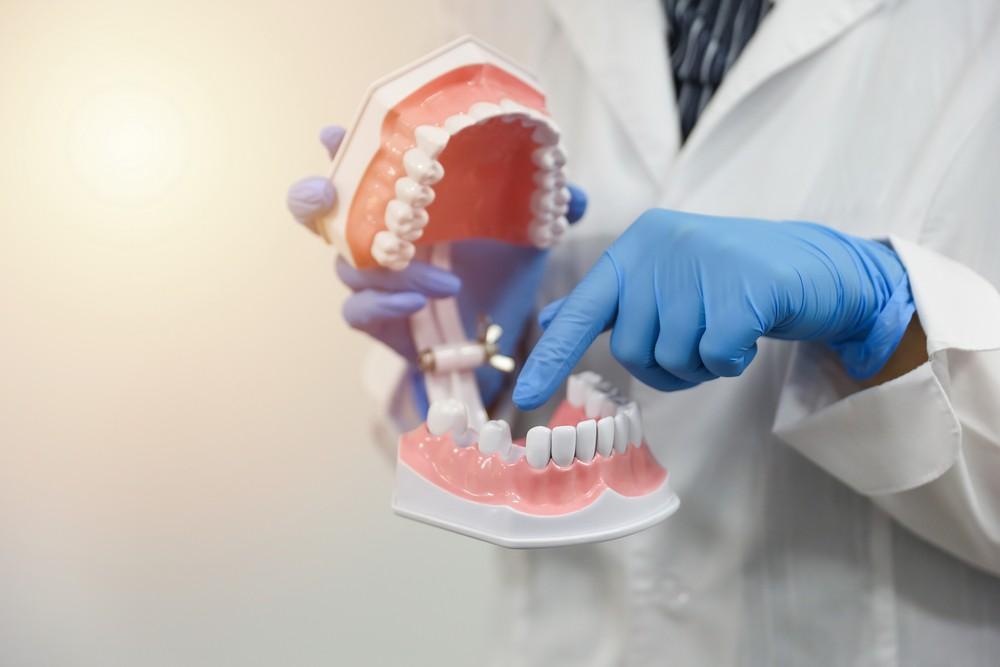 implant dentar bucuresti, dinti lipsa, cabinet stomatologic anda cruceru, implant dentar beneficii