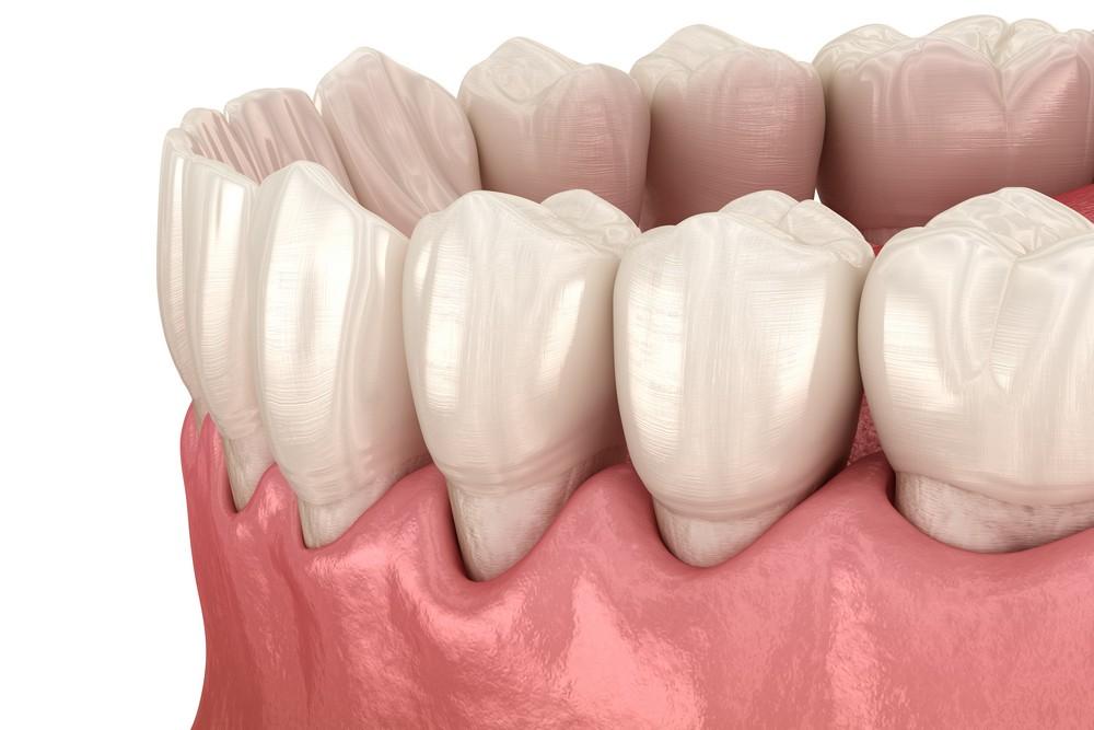 parodontoza bucuresti, tratament parodontoza bucuresti, dr anda cruceru, parodontologie bucuresti